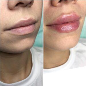 Особливості аугментації губ